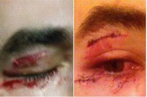 Stéphane, blessé à l'oeil : crédit Nauticea